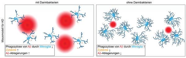 Der Einfluss des Darmmikrobioms auf neurodegenerative Erkrankungen